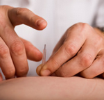 a practitioner providing acupuncture in Tunbridge Wells